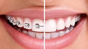 Diş teli tedavisi ile ilgili doğru bilinen yanlışlar